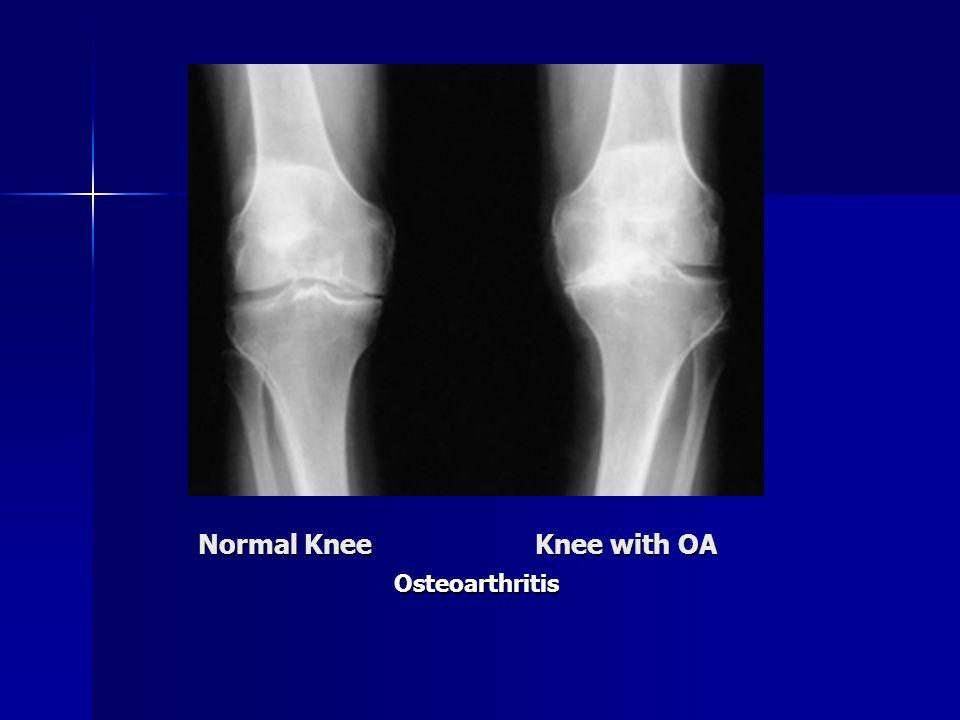 Normal Knee Knee with OA Osteoarthritis
