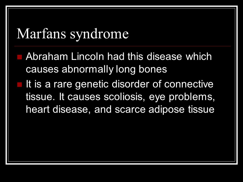 Marfans syndrome Abraham Lincoln had this disease which causes abnormally long bones It is a rare genetic disorder of connective tissue.