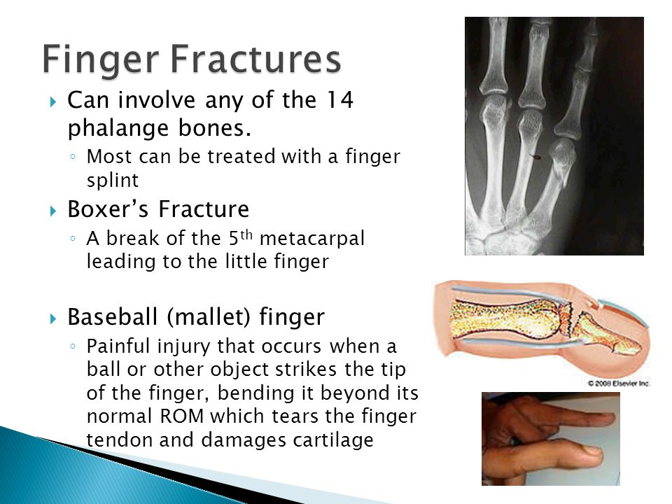  Can involve any of the 14 phalange bones. ◦ Most can be treated with a finger splint  Boxer's Fracture ◦ A break of the 5 th metacarpal leading to