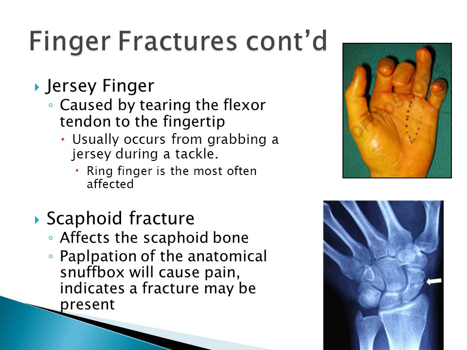  Jersey Finger ◦ Caused by tearing the flexor tendon to the fingertip  Usually occurs from grabbing a jersey during a tackle.  Ring finger is the m