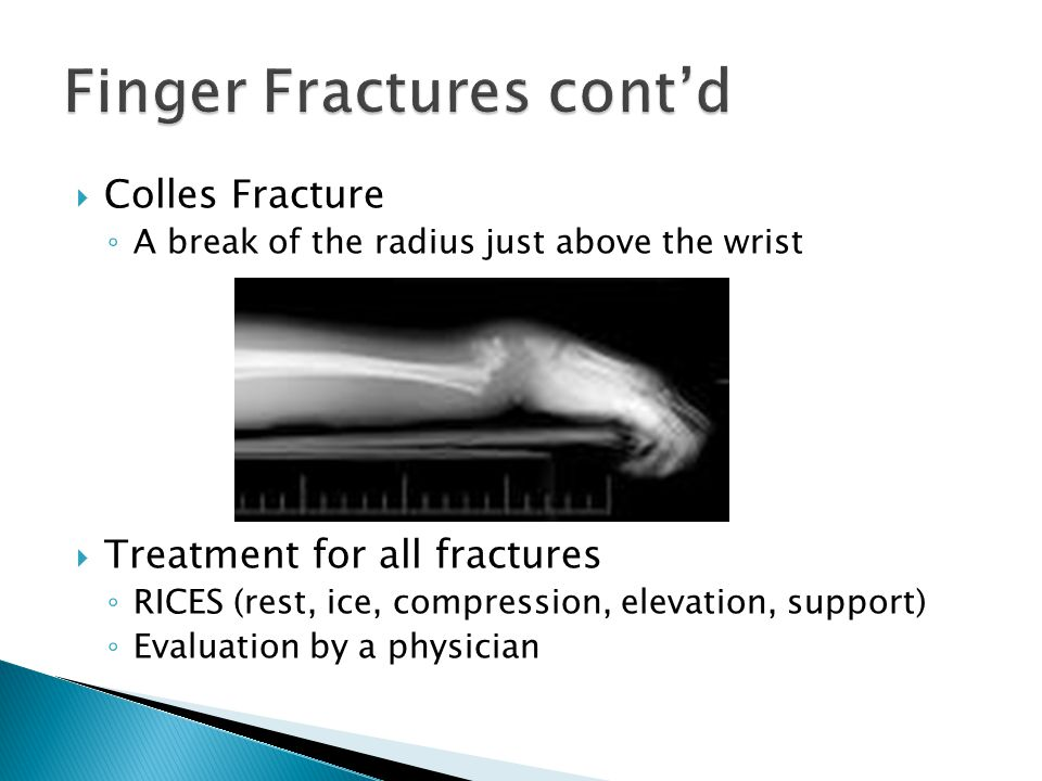 Colles Fracture ◦ A break of the radius just above the wrist  Treatment for all fractures ◦ RICES (rest, ice, compression, elevation, support) ◦ Ev