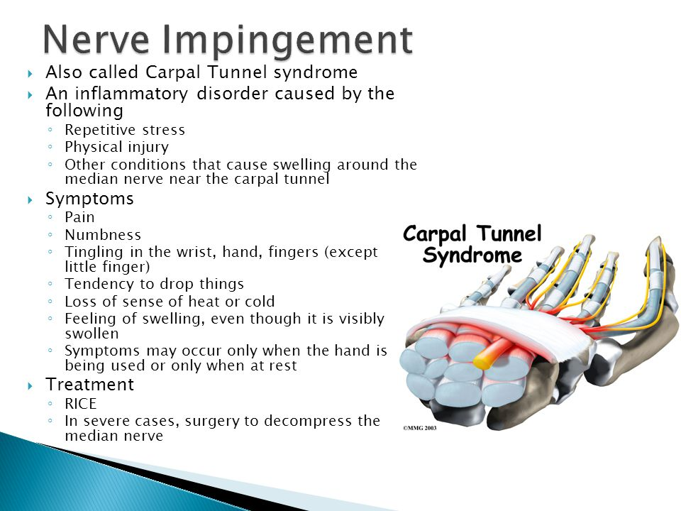  Also called Carpal Tunnel syndrome  An inflammatory disorder caused by the following ◦ Repetitive stress ◦ Physical injury ◦ Other conditions that
