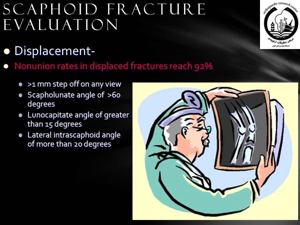 Displacement- Displacement- Nonunion rates in displaced fractures reach 92% Nonunion rates in displaced fractures reach 92% Scaphoid Fracture Evaluation >1 mm step off on any view >1 mm step off on any view Scapholunate angle of >60 degrees Scapholunate angle of >60 degrees Lunocapitate angle of greater than 15 degrees Lunocapitate angle of greater than 15 degrees Lateral intrascaphoid angle of more than 20 degrees Lateral intrascaphoid angle of more than 20 degrees