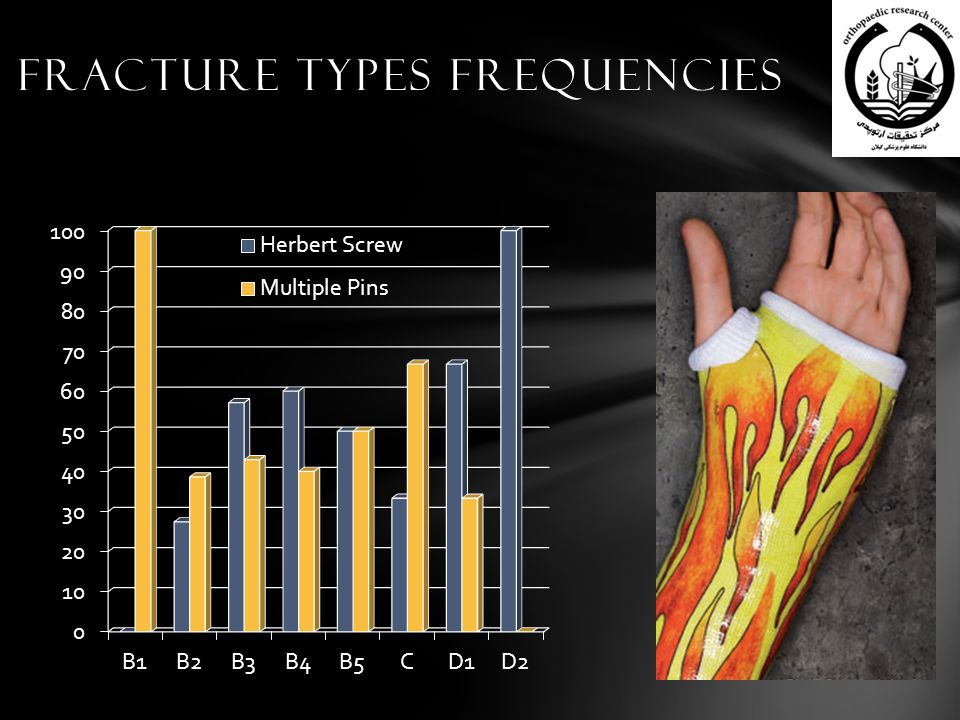Fracture Types Frequencies