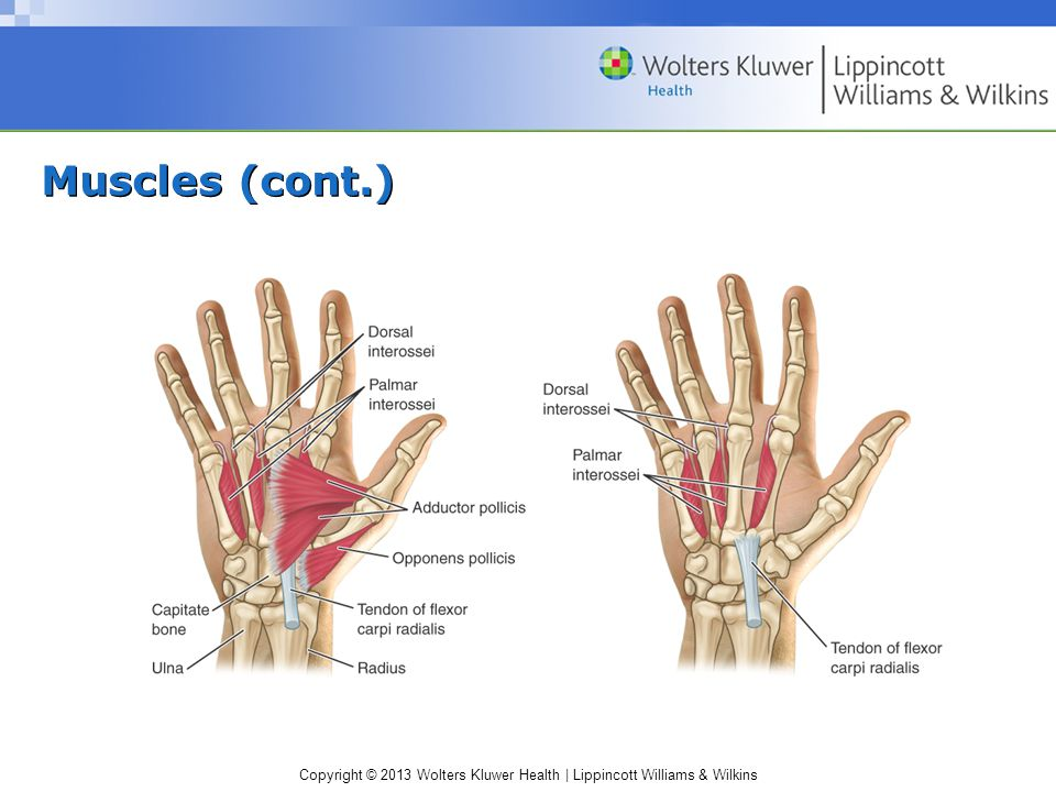 Copyright © 2013 Wolters Kluwer Health   Lippincott Williams & Wilkins Nerve Entrapment Syndromes (cont.) Ulnar nerve entrapment –Ulnar tunnel syndrome Due to repetitive compressive trauma to the palmar aspect of the hand S&S  Numbness in the ulnar nerve distribution (especially little finger)  + Froment's sign  Slight weakness in grip strength  + Tinel's sign Management: splinting, NSAIDs; activity modification