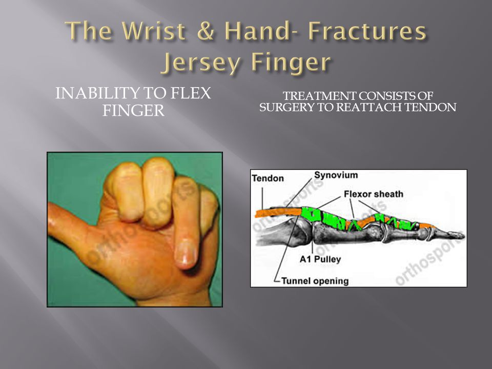 INABILITY TO FLEX FINGER TREATMENT CONSISTS OF SURGERY TO REATTACH TENDON