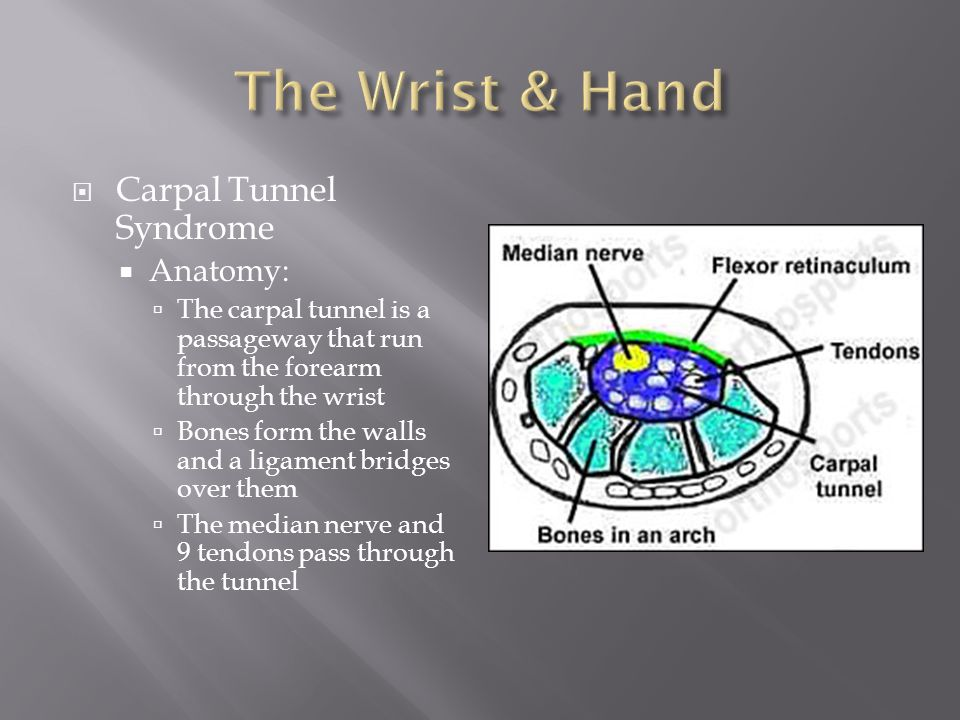  Carpal Tunnel Syndrome  Anatomy:  The carpal tunnel is a passageway that run from the forearm through the wrist  Bones form the walls and a ligament bridges over them  The median nerve and 9 tendons pass through the tunnel