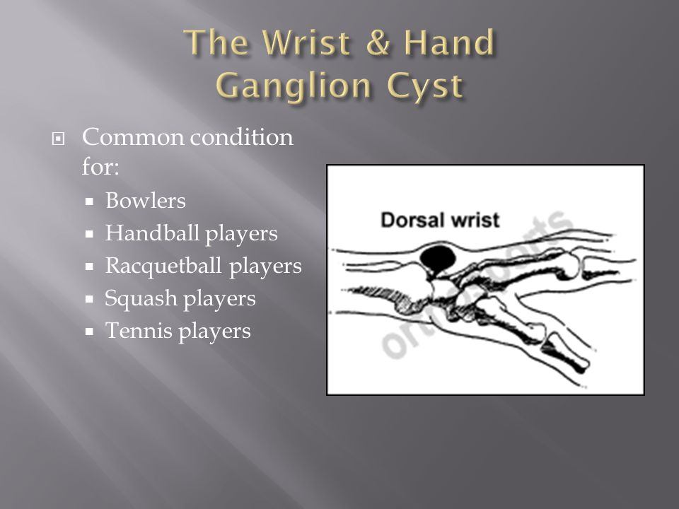  Common condition for:  Bowlers  Handball players  Racquetball players  Squash players  Tennis players