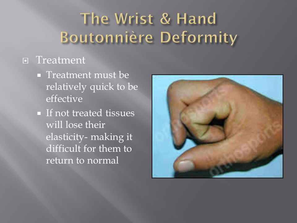  Treatment  Treatment must be relatively quick to be effective  If not treated tissues will lose their elasticity- making it difficult for them to return to normal