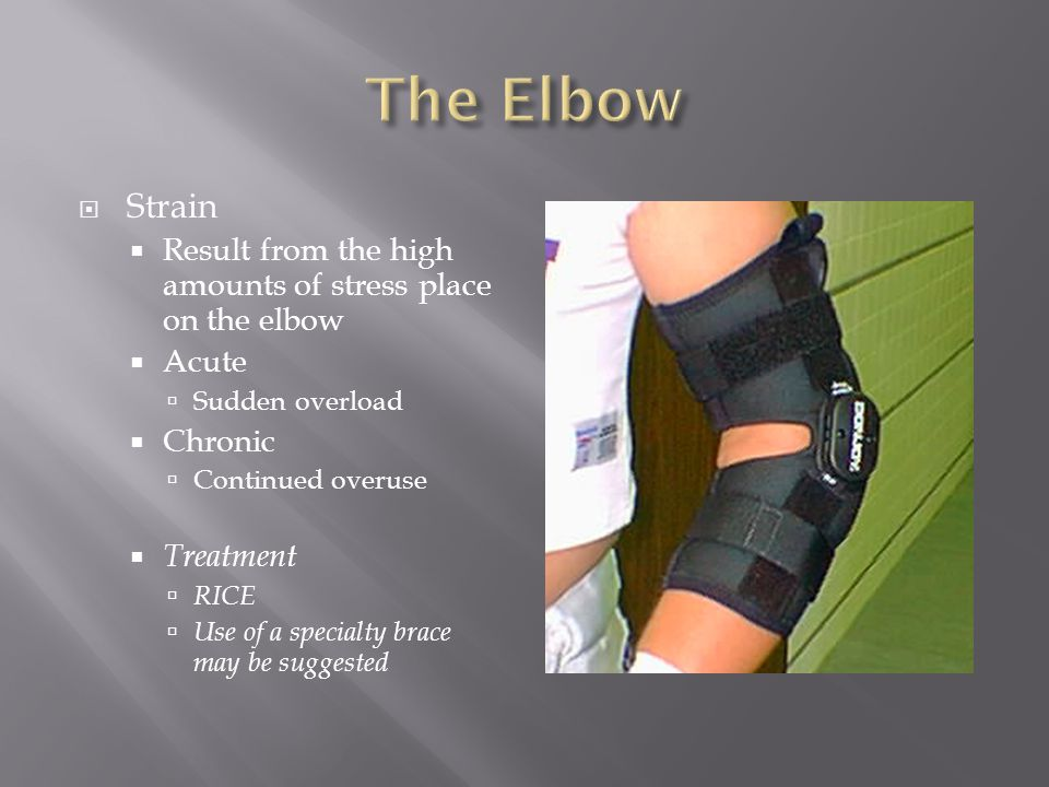  Strain  Result from the high amounts of stress place on the elbow  Acute  Sudden overload  Chronic  Continued overuse  Treatment  RICE  Use of a specialty brace may be suggested