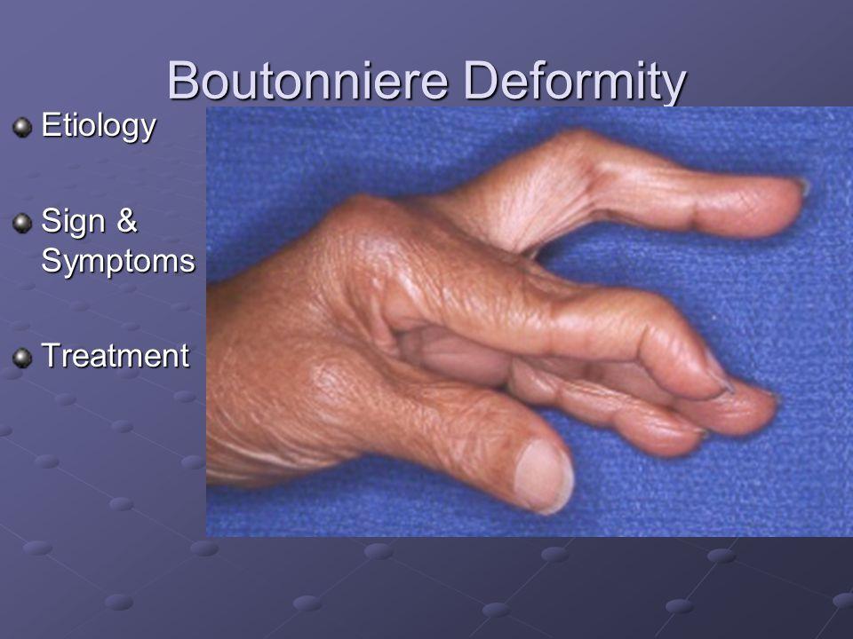 Jersey Finger Etiology Signs & Symptoms Treatment