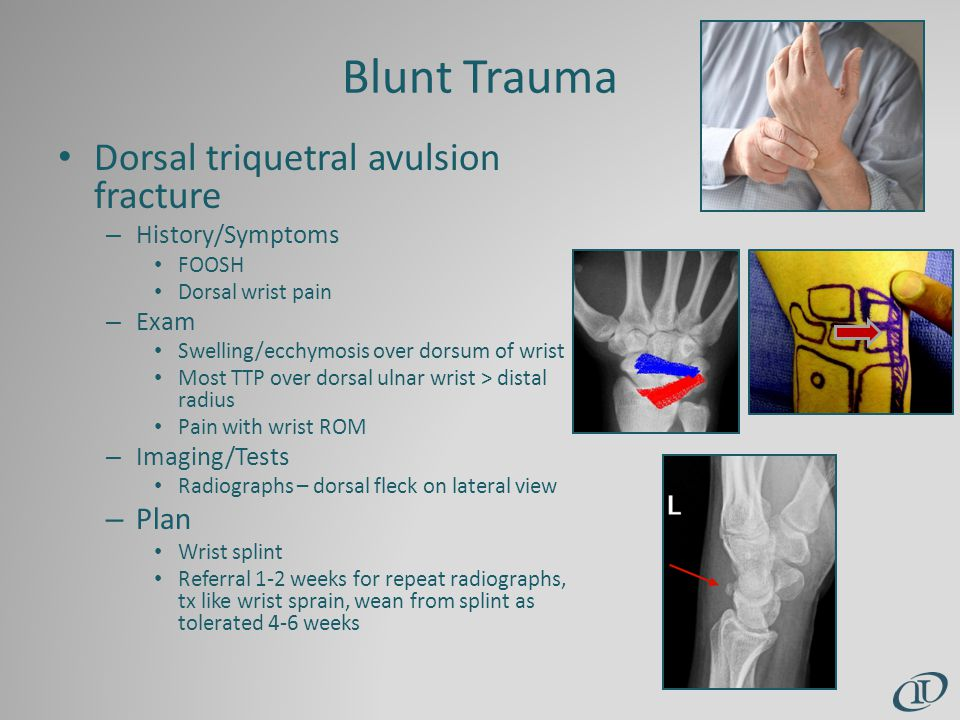 Blunt Trauma Dorsal triquetral avulsion fracture – History/Symptoms FOOSH Dorsal wrist pain – Exam Swelling/ecchymosis over dorsum of wrist Most TTP over dorsal ulnar wrist > distal radius Pain with wrist ROM – Imaging/Tests Radiographs – dorsal fleck on lateral view – Plan Wrist splint Referral 1-2 weeks for repeat radiographs, tx like wrist sprain, wean from splint as tolerated 4-6 weeks