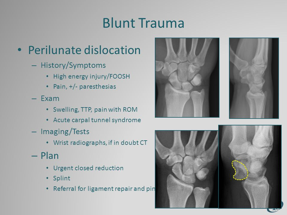 Blunt Trauma Perilunate dislocation – History/Symptoms High energy injury/FOOSH Pain, +/- paresthesias – Exam Swelling, TTP, pain with ROM Acute carpal tunnel syndrome – Imaging/Tests Wrist radiographs, if in doubt CT – Plan Urgent closed reduction Splint Referral for ligament repair and pinning
