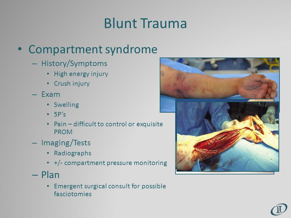 Blunt Trauma Compartment syndrome – History/Symptoms High energy injury Crush injury – Exam Swelling 5P's Pain – difficult to control or exquisite PROM – Imaging/Tests Radiographs +/- compartment pressure monitoring – Plan Emergent surgical consult for possible fasciotomies
