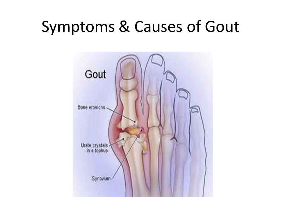 Symptoms & Causes of Gout