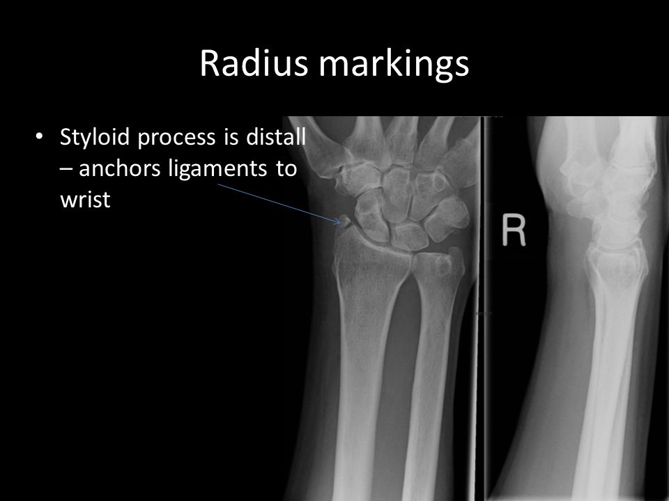 Radius markings Styloid process is distall – anchors ligaments to wrist