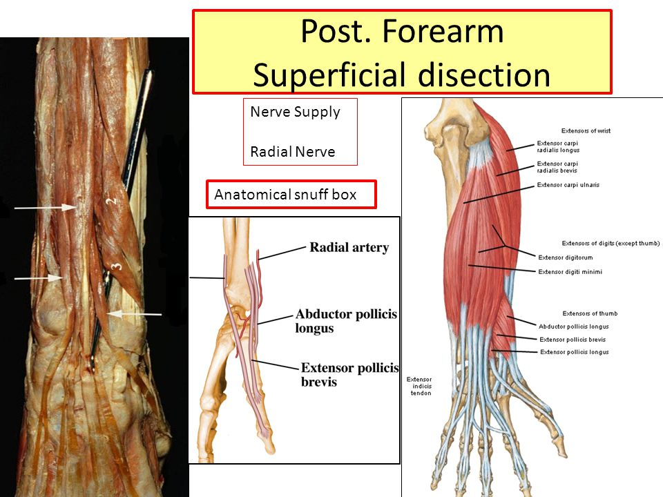 Post. Forearm Superficial disection Nerve Supply Radial Nerve Anatomical snuff box