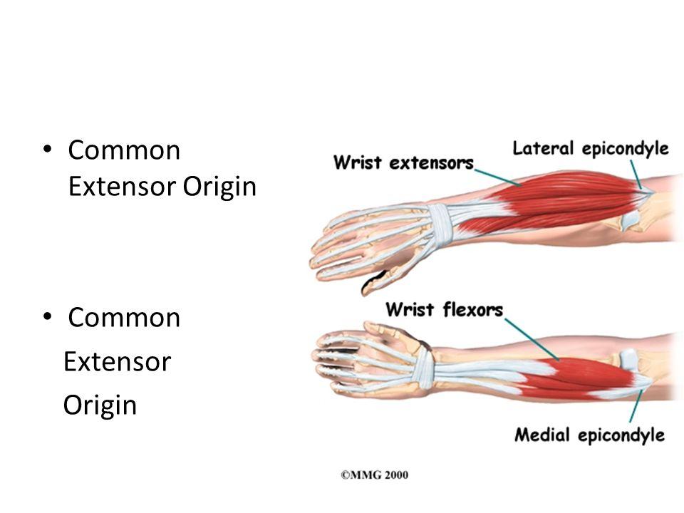 Common Extensor Origin Common Extensor Origin