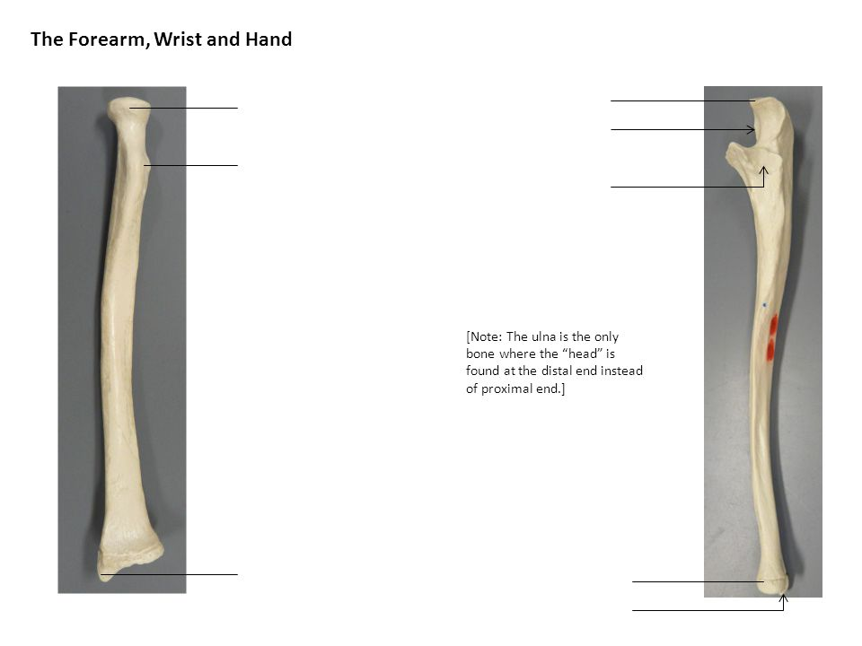 The Forearm, Wrist and Hand [Note: The ulna is the only bone where the head is found at the distal end instead of proximal end.]
