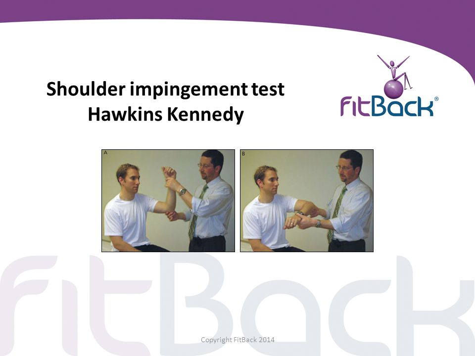 Shoulder impingement test Hawkins Kennedy Copyright FitBack 2014