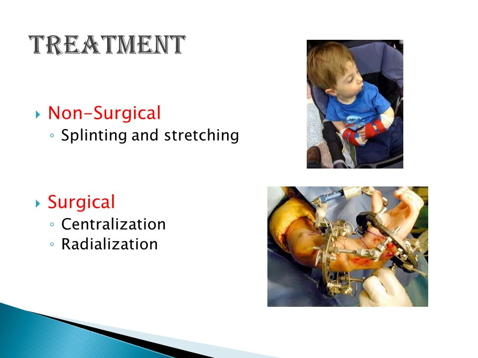  Non-Surgical ◦ Splinting and stretching  Surgical ◦ Centralization ◦ Radialization