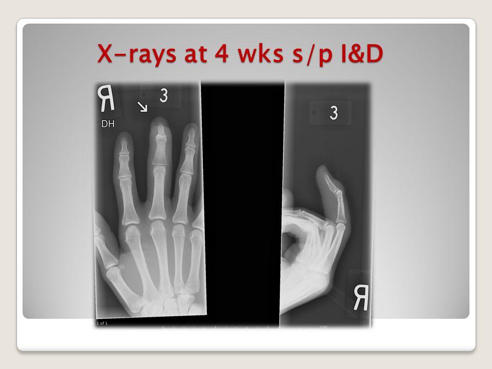 X-rays at 4 wks s/p I&D