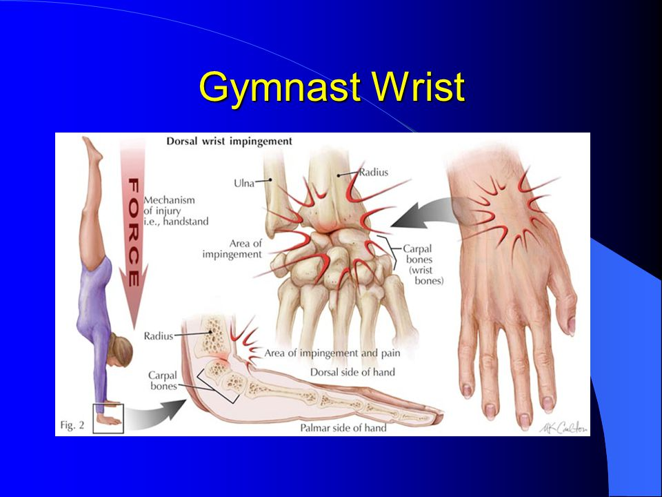 Gymnast's wrist frequently show physeal irregularities and bony sclerosis on X-ray Gymnast's wrist frequently show physeal irregularities and bony sclerosis on X-ray If untreated can result in permanent radial deformity and shortening due to growth arrest If untreated can result in permanent radial deformity and shortening due to growth arrest Rest relieves symptoms Rest relieves symptoms Extension splints can prevent recurrence Extension splints can prevent recurrence