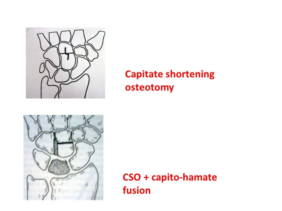 Capitate shortening osteotomy CSO + capito-hamate fusion