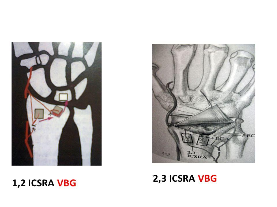 1,2 ICSRA VBG 2,3 ICSRA VBG