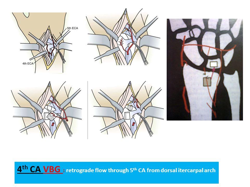 4 th CA VBG : retrograde flow through 5 th CA from dorsal itercarpal arch