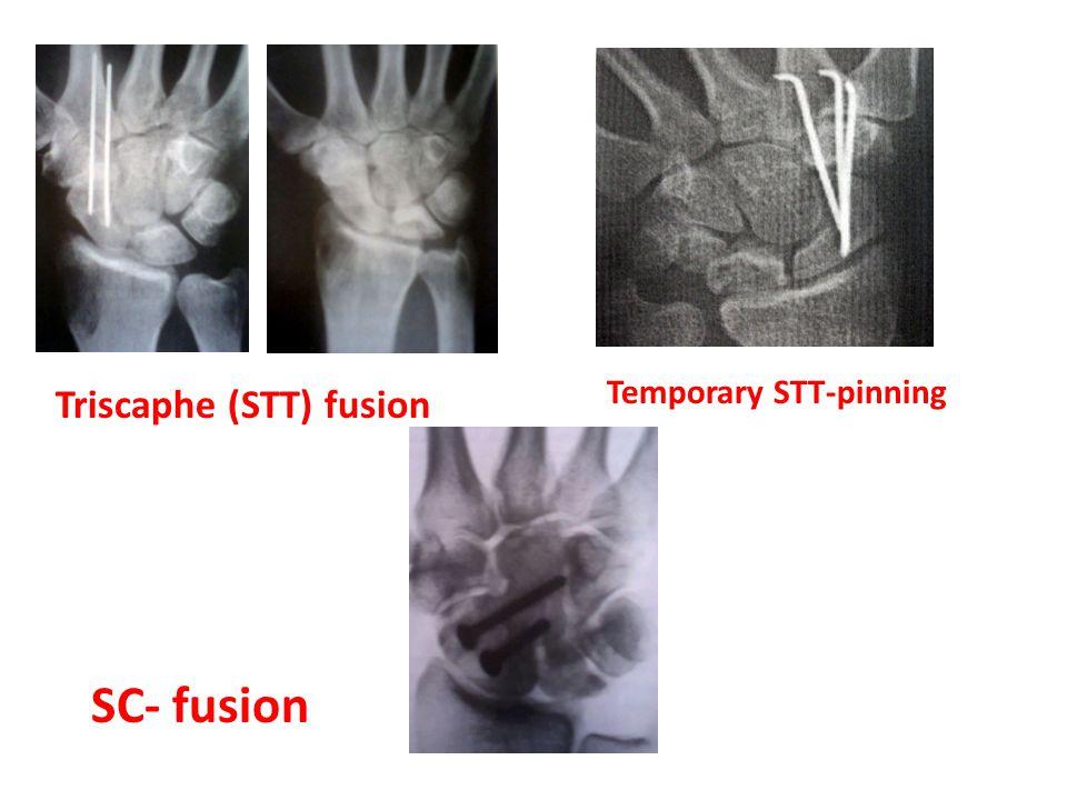 Triscaphe (STT) fusion SC- fusion Temporary STT-pinning