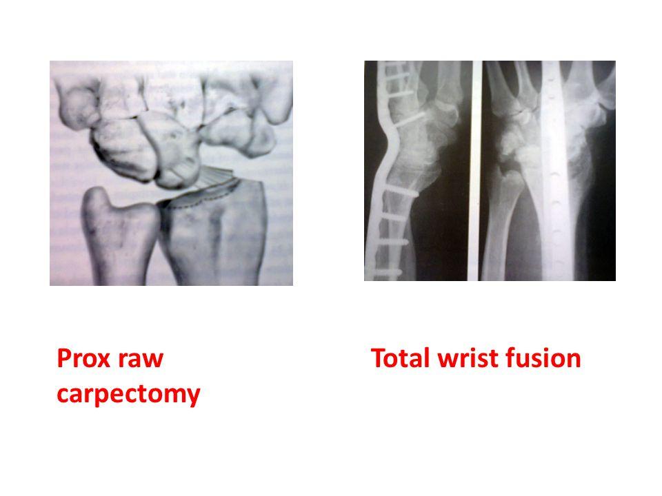 Prox raw carpectomy Total wrist fusion