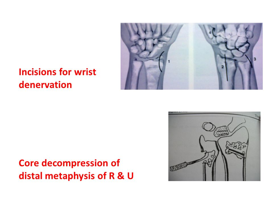 Core decompression of distal metaphysis of R & U Incisions for wrist denervation