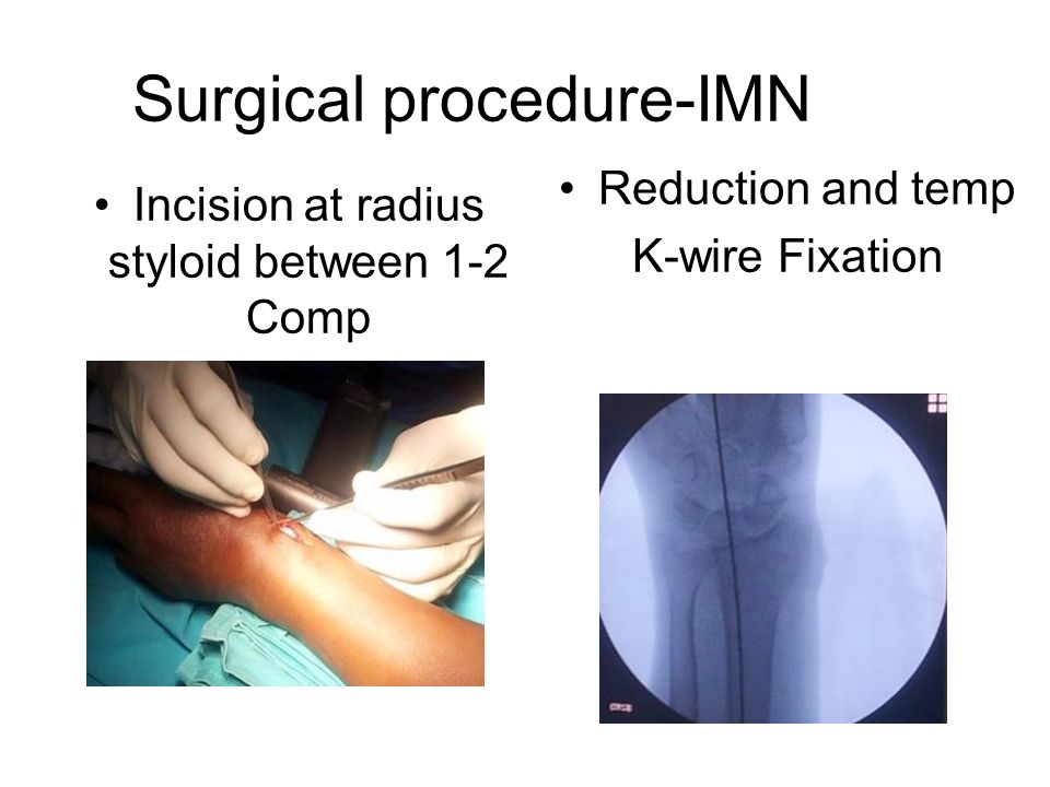 Surgical procedure-IMN Reduction and temp K-wire Fixation Incision at radius styloid between 1-2 Comp