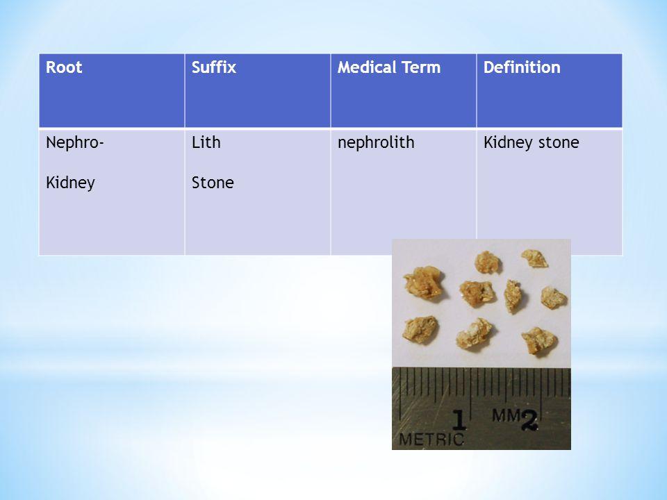 RootSuffixMedical TermDefinition Nephro- Kidney Lith Stone nephrolithKidney stone