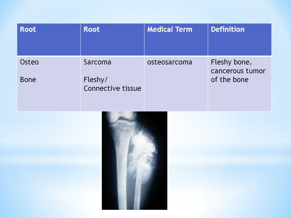 Root Medical TermDefinition Osteo Bone Sarcoma Fleshy/ Connective tissue osteosarcomaFleshy bone, cancerous tumor of the bone