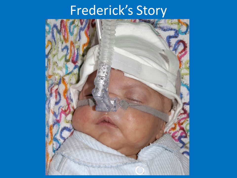 Frederick's Story