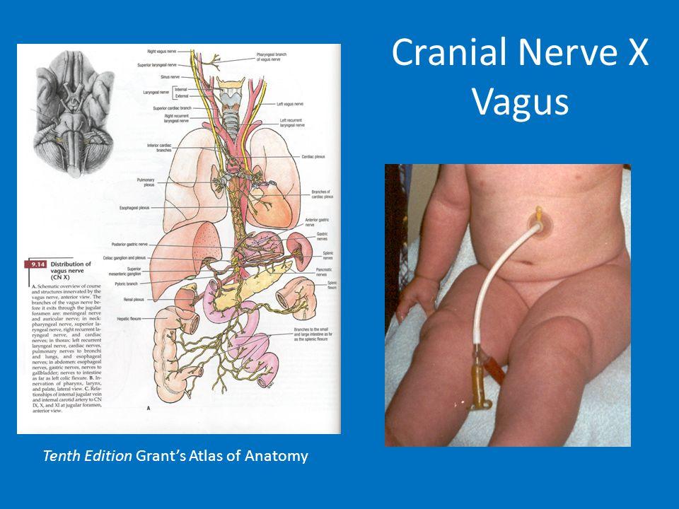 Cranial Nerve X Vagus Tenth Edition Grant's Atlas of Anatomy