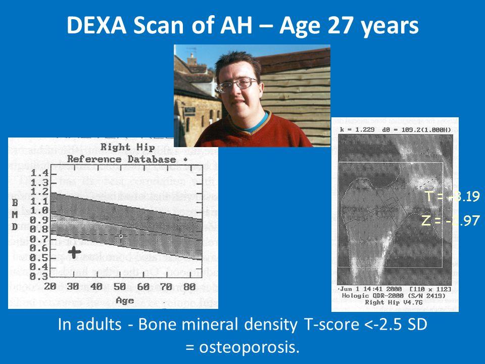 T = -3.19 Z = -2.97 In adults - Bone mineral density T-score <-2.5 SD = osteoporosis.