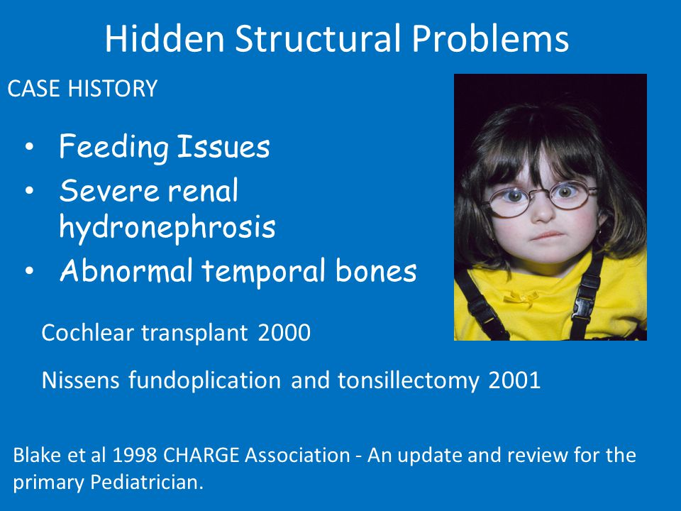 Feeding Issues Severe renal hydronephrosis Abnormal temporal bones CASE HISTORY Hidden Structural Problems Cochlear transplant 2000 Nissens fundoplication and tonsillectomy 2001 Blake et al 1998 CHARGE Association - An update and review for the primary Pediatrician.