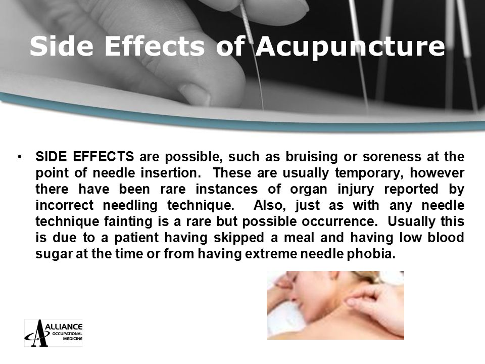 Side Effects of Acupuncture SIDE EFFECTS are possible, such as bruising or soreness at the point of needle insertion.