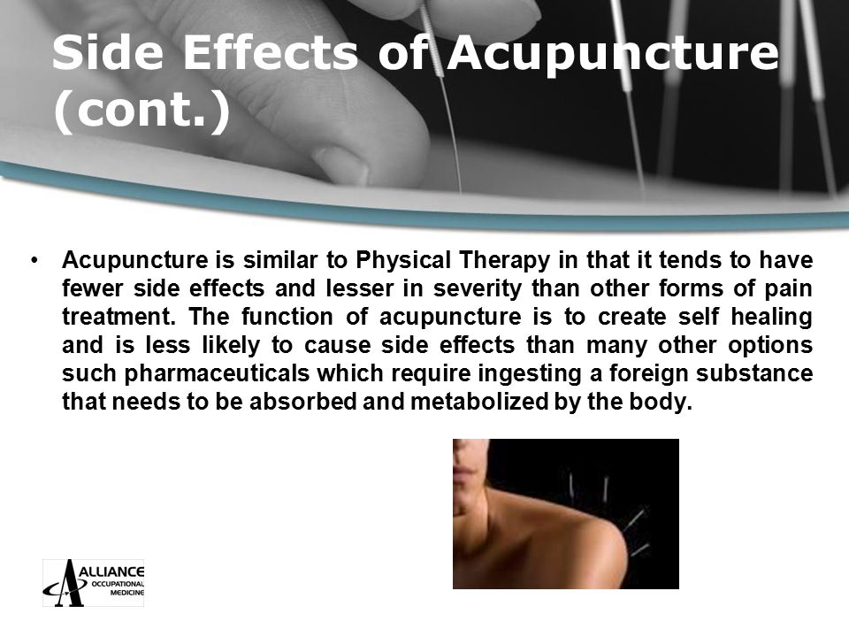 Side Effects of Acupuncture (cont.) Acupuncture is similar to Physical Therapy in that it tends to have fewer side effects and lesser in severity than other forms of pain treatment.