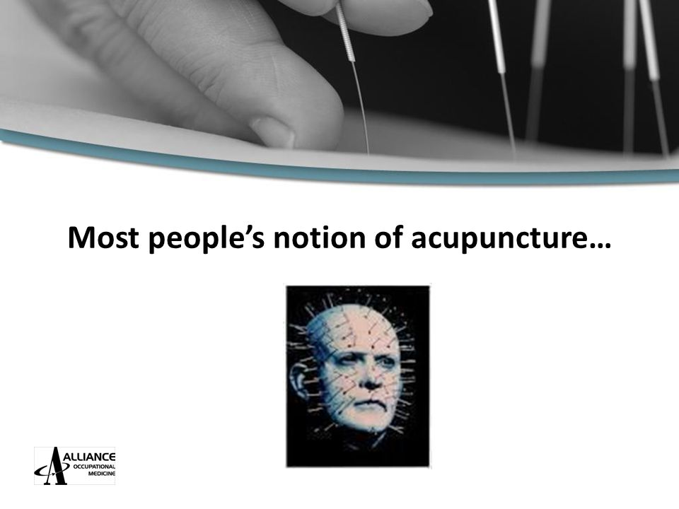 Most people's notion of acupuncture…