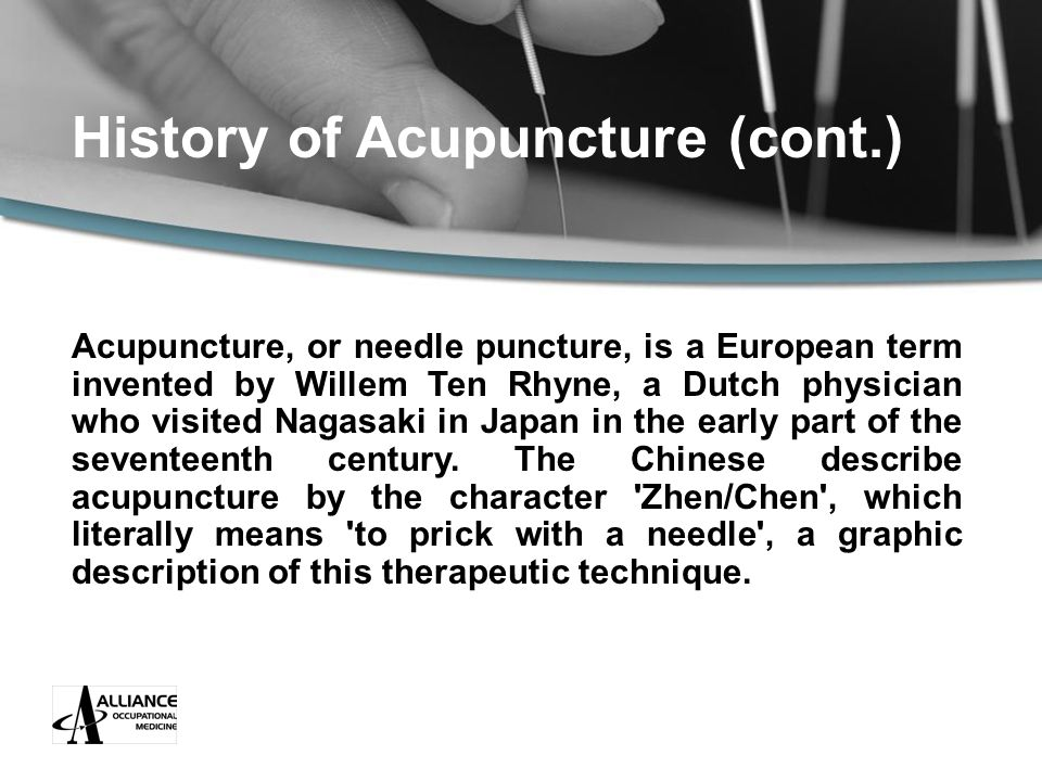History of Acupuncture (cont.) Acupuncture, or needle puncture, is a European term invented by Willem Ten Rhyne, a Dutch physician who visited Nagasaki in Japan in the early part of the seventeenth century.