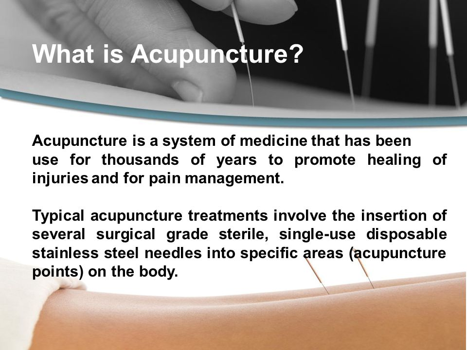 What is Acupuncture.