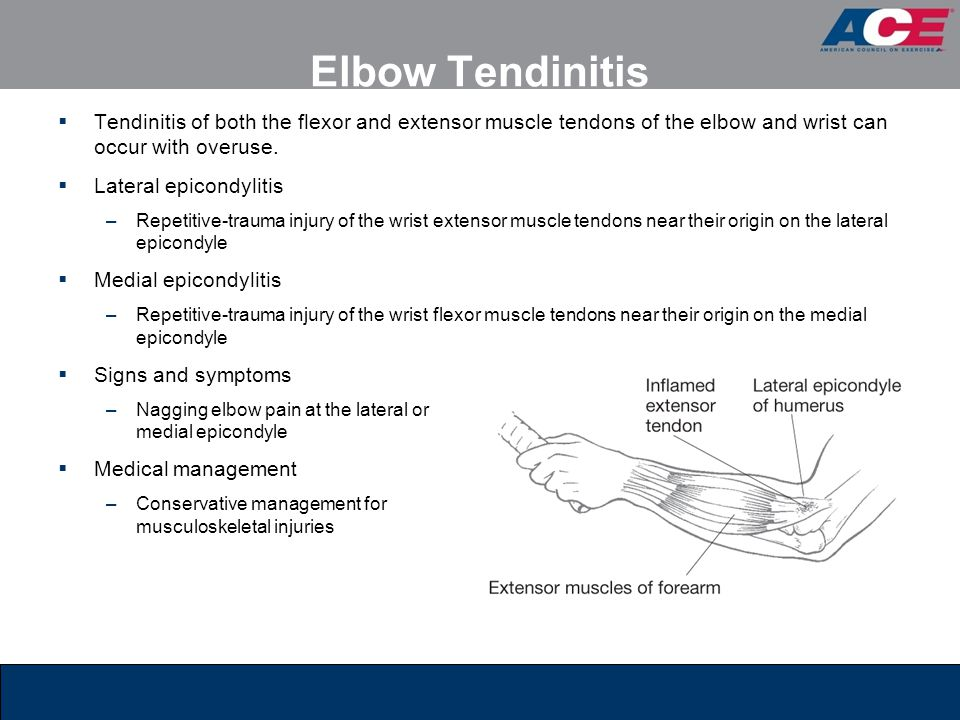 Elbow Tendinitis  Tendinitis of both the flexor and extensor muscle tendons of the elbow and wrist can occur with overuse.  Lateral epicondylitis –R