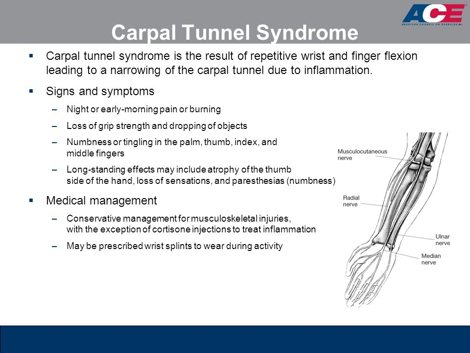 Carpal Tunnel Syndrome  Carpal tunnel syndrome is the result of repetitive wrist and finger flexion leading to a narrowing of the carpal tunnel due t