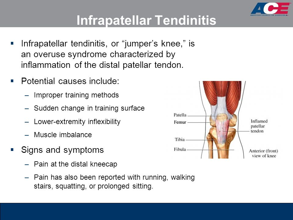 Infrapatellar Tendinitis  Infrapatellar tendinitis, or jumper's knee, is an overuse syndrome characterized by inflammation of the distal patellar tendon.