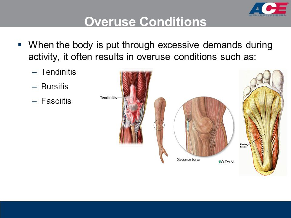 Overuse Conditions  When the body is put through excessive demands during activity, it often results in overuse conditions such as: –Tendinitis –Bursitis –Fasciitis