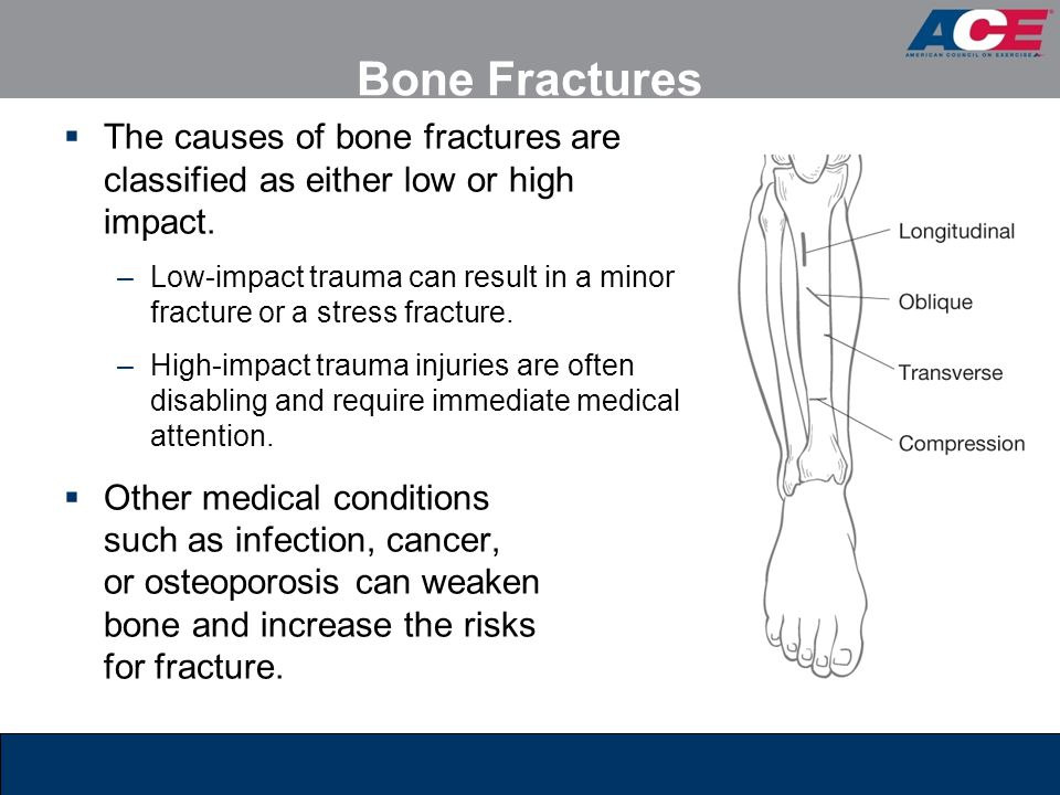 Bone Fractures  The causes of bone fractures are classified as either low or high impact. –Low-impact trauma can result in a minor fracture or a stre